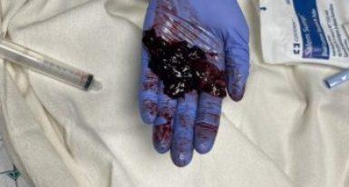 skrzepy z płuc po wyssaniu